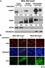 Fig 3. Depletion of mtp53 modulates PARP localization and PARP enzymatic activity. (A) Cells MDA-468 vector and MDA-468.shp53 were grown in the presence or absence of 8 μg of doxycycline for 6 d, and fractionation was carried out as described. Samples were resolved on a gradient 4–12% SDS/PAGE. Protein levels of p53, PARP1, Actin, and Fibrillarin in the fractions were determined by Western blot analysis. Actin was used to normalize the cytoplasmic and nuclear-soluble fractions, and fibrillarin was used to normalize the chromatin fraction. A total of 50 μg of protein from the cytoplasmic fraction and nuclear-soluble fractions per lane and 5 μg of the chromatin fraction per lane were resolved. ImageJ was used to quantify p53 and PARP1 change in each fraction compared with the corresponding control. (B) Confocal microscopy images of PAR proteins were obtained by using anti-PAR antibody. DAPI staining was used to determine the nucleus, and GFP was an indicator of doxycycline-mediated induction. Images are representative of three independent experiments.
