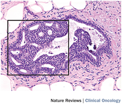 Fig 1. Histological appearance of atypical ductal hyperplasia.