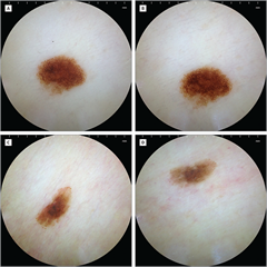 Figure 2. Examples of Dermoscopic Images Captured by Patients Using the Mobile Dermatoscope