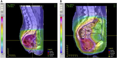 Fig 1. Representative radiation plans for (A) a rectal cancer patient treated with 3-dimensional conformal radiation therapy and (B) an anal cancer patient treated with IMRT.