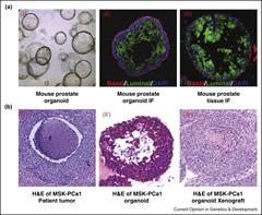 Figure 1. Examples of mouse prostate organoid and human prostate cancer organoid
