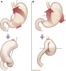 Fig 1. (A) Organoaxial volvulus occurs when the stomach rotates along its long axis, placing the greater curvature anteriorly and the lesser curvature posteriorly. (B) Mesenteroaxial volvulus occurs when the stomach rotates along its short axis placing the antrum anteriorly and superiorly.