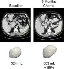 Fig 2. Example of changes in spleen volume after 6 months of chemotherapy.