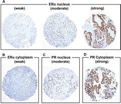 Fig 1. Immunohistochemical analyses of estrogen receptor-α (ERα) and progesterone receptor (PR) using tissue microarrays (original magnification, A–F: × 100 magnification).