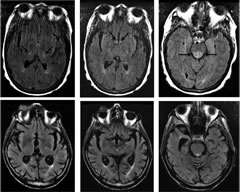 Fig 1. Axial FLAIR images from case 1 (top row, left to right) demonstrate abnormal hyperintense signal in the bilateral thalami, mammillary bodies/hypothalamus, and posterior pons.