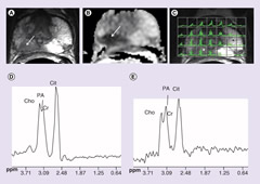 Fig 3. MRI and magnetic resonance spectroscopic imaging of primary prostate cancer.