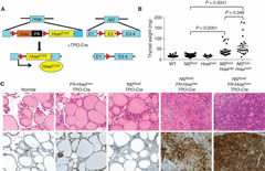 Fig 1. TPO-Cre/FR-HrasG12V/Nf2flox2 mice develop poorly differentiated thyroid cancers with strong activation of MAPK signaling.