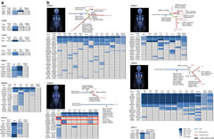 Fig 1. CSF ctDNA better captures the genomic alterations in patients with brain tumours than plasma ctDNA.