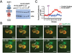 Fig 2. NVOC-EMP1 is a photoactivatable ligand for TLR4 signaling.