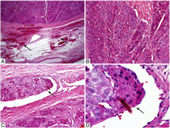 Fig 1. Microscopic pictures of a 4-cm EHCC with EVI (7 foci) in a 44-year-old man without distant disease at presentation.