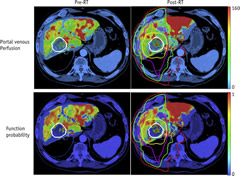 Fig 3. Portal venous perfusion (top) and local function probability maps (bottom) at pre-RT (left column) and 1 month after RT (right column).