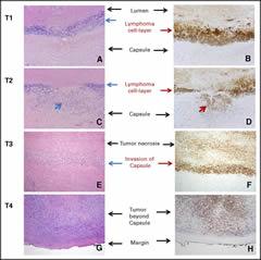 Fig 1. Pathologic T staging.