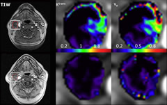 Fig 3. Pretreatment and intratreatment DCE MR images of a patient with locoregional control (63-year-old man).