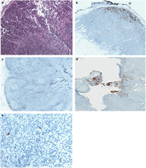 Fig 1. Patterns of lymph node involvement by Merkel cell carcinoma.