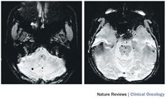 Fig 3. Radiation-induced cavernomas.