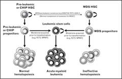 Fig 1. Model of acquisition of molecular genetic abnormalities in MDS, de novo AML, and CHIP.