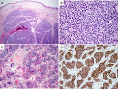 Fig 3. Morphologic spectrum of EWSR1-ERG Ewing sarcomas.