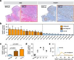 Fig 1. PARP1 expression in human tongue tumors.