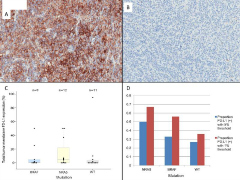 Fig 2. Immunohistochemical analysis of tumor cell-surface expression of PD-L1 from representative samples (20x).