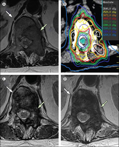 Fig 1. Image-based assessment, diagnosis, treatment planning, and response after spine SBRT. (A) The patient had metastatic lung cancer presenting with a T12 metastasis with a well-defined mass-type tumour (green arrow) within the vertebral body, ipsilateral posterior elements, and minor disease extension to the posterior contralateral lamina on axial T2-weighted MRI. Left-sided anterior, lateral, and posterior epidural tumour extension (Bilsky 1B) and paraspinal disease were also seen. On T1-weighted imaging, the signal in the rest of the vertebral body was consistent with the presence of disease but was not conspicuous on T2-weighted imaging (white arrow). (B) A doughnut-type distribution was applied for SBRT and the patient received 24 Gy in two fractions. (C) 6 months after SBRT, axial T2-weighted MRI showed regression of the epidural and paraspinal disease (green arrow) with heterogeneous T2 hypointensity (white arrow) within the bone. What the signal change represented (disease, fibrosis, or necrosis) was unknown, but tumour regression led to a classification of stable disease and possible partial response. (D) At 12 months, axial T2-weighted MRI showed some minor increase in left-sided epidural and paraspinal disease (green arrow) and more homogeneous T2 hypointensity in the vertebral body and bilateral posterior elements (white arrow). The patient was asymptomatic. Biospy confirmed tumour recurrence, resulting in a classification of progressive disease. This case highlights the challenges of interpreting signal changes after spine SBRT. SBRT=stereotactic body radiotherapy.