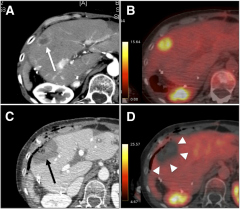 Fig 3. Immediate postablation treatment assessment with intraprocedural split-dose PET/CT in 65-y-old woman with metastatic colorectal cancer and rising level of carcinoembryonic antigen after partial liver resection.