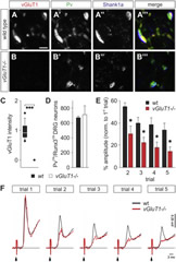 Fig 1. Physiological Deficits at Sensory Afferent Terminals in vGluT1−/− Mice.