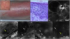 Fig 1. Spongiotic dermatitis.