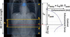 Fig 1. Delay time (Tdelay) was optimized between start of 4D-CT acquisition and start of contrast injection.