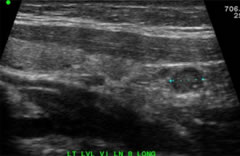 Fig 1 Longitudinal high-frequency ultrasound image of level 6 metastatic papillary thyroid cancer node measuring 1.2 cm with microcalcifications and rounded appearance.