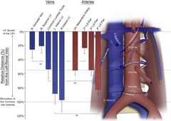 Fig 1. Relative position of infrarenal lumbar arteries (LA) and veins, right (R.) gonadal vein and inferior (Inf.) mesenteric artery.