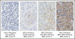 Fig 1. Photomicrographs showing immunohistochemical staining of programmed death-ligand 1 (PD-L1; 22C3 antibody) in melanoma (MEL) samples.