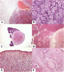 Fig 2. Adrenocortical carcinoma, adrenal gland, ferret.