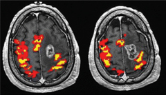 Fig 1. Maps of BOLD functional MR imaging motor activation in a 59-year-old man with a GBM adjacent to the left PMC.