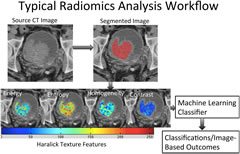 Fig 1. Radiomics analysis workflow. Radiomics-based analysis starts with segmentation of the structure(s) of interest, in this case, bladder cancer. Various texture features including Haralick textures are generated. A machine-learning classifier is trained using features generated from several images. Classification of various measures is then performed on never-seen-before images.