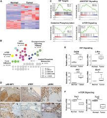 Fig 6. Vhl and Pbrm1 Doubly Deficient Clear Cell Kidney Tumors Display Hyperactive mTORC1 Signaling.