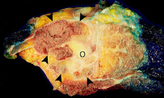 Fig 9. Resected scapula after tumor recurred, cut in the coronal plane.