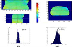 Fig 10. Patient induced susceptibility distortions in the MRCAT source MR images.