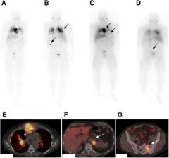 Fig 4. Patient with metastatic pheochromocytoma presented with progression of disease.