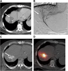 Fig 1. CRC liver metastases can be hypervascular on angiography, allowing selective intraarterial delivery of particles into tumor.