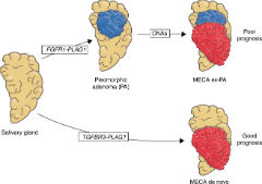 Fig 7. The role of FGFR1-PLAG1 and TGFBR3-PLAG1 in MECA development.