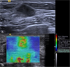 Fig 4. Invasive ductal carcinoma Grade 1 seen in B-mode ultrasound as an 8 mm, hypoechoic, circumscribed lesion, which was initially classified as BI-RADS 3.