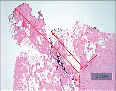 Figure 1. Ink used to define the margin surface can be seen at various distances from the tumor edge.