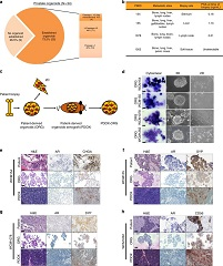 Fig. 1 Development of patient-derived neuroendocrine prostate cancer models.