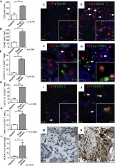 Fig. 4 Increased Activation of Intratumoral CD8+ T cells in Patients Treated with Pegilodecakin.