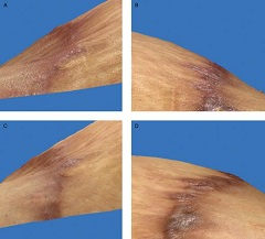 Fig 7. Three-dimensional photographic comparison of a unilateral abdominoplasty scar before and 12 weeks after twice-daily application of SKN2017B on one side (A) and silicone cream on the other side (B) in this 45-year-old, African American woman. There is noticeable improvement in pigmentation, vascularity, pliability, and height of the side treated with SKN2017B (C). In contrast, the side treated with silicone cream shows a worsening in pigmentation and height of the scar (D).