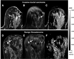 Fig 2. Examples of a true-positive and false-positive finding on conventional MRI and corresponding appearance on DWI.