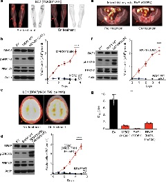 Fig. 2: Characterization of activating mutations in MEK2, RAF1 and BRAF and their dependence on ERK signalling in histiocytoses.