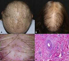 Fig 1. Persistent chemotherapy-induced alopecia (pCIA).