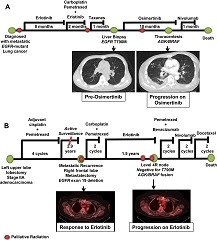 Fig 1. Clinical information for patients with resistance to EGFR tyrosine kinase inhibitor and BRAF fusions. (A) Disease course of patient 2, who was found to have acquired resistance to osimertinib and acylglycerol kinase gene (AGK)/BRAF fusion. (B) Disease course of patient 4, who was found to have acquired resistance to erlotinib and progressive mediastinal disease with AGK/BRAF fusion.