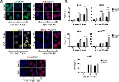 Figure 1 Enoxacin boosts DDR signalling.